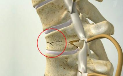 Компрессионный перелом позвоночника — тяжелая травма