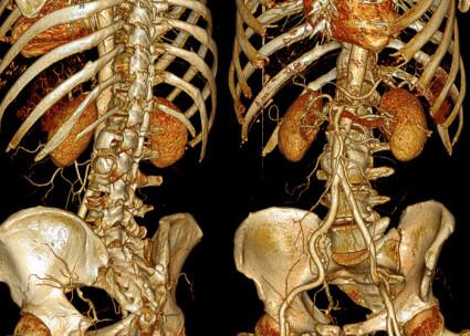 Компьютерное сканирование пояснично-крестцового участка считается незаменимым видом диагностики