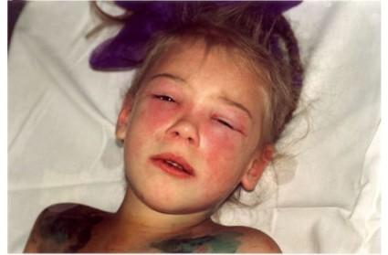 Ювенильный дерматомиозит часто поражает детей