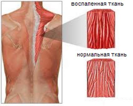 Миозит мышц шеи может возникнуть практически у каждого