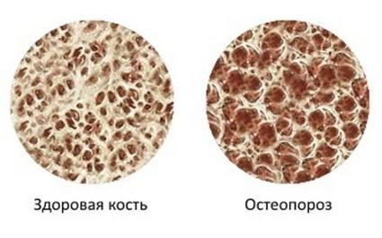 Здоровая кость и пораженная остеопороз