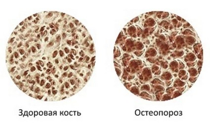 При остеопорозе кости таза становятся хрупкими