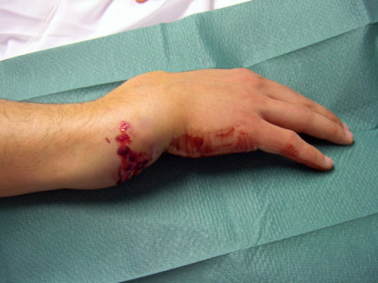 Перелом руки со смещением