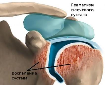 Воспаление суставной ткани