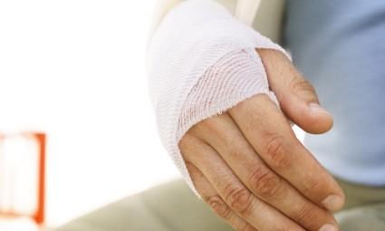 Мазь от растяжения связок на руке