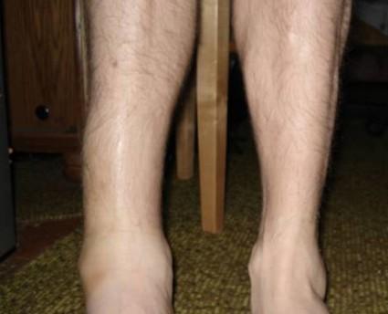 Вывих голени – это травма со смещением большеберцовой кости
