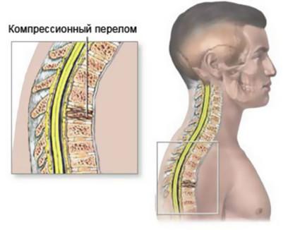 При осложнённом типе к болям присоединяются неврологические расстройства