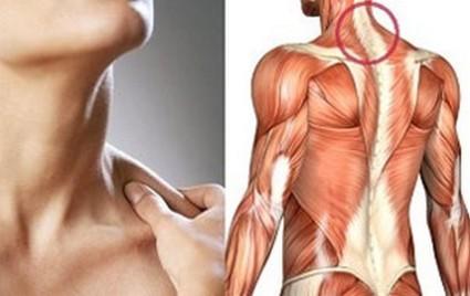 Поражение мышц шеи