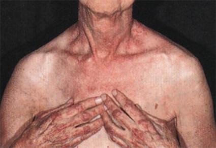 Ревматическая болезнь, имеющая свойство поражать поперечнополосатую мышечную ткань