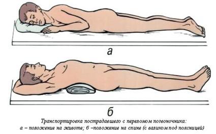 При транспортировке медики обездвиживают позвоночник пациента, накладывая корсет