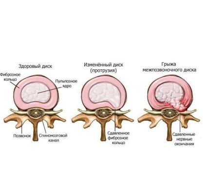 Протрузия поясничного отдела позвоночника часто проявляется в виде осложнения после остеохондроза