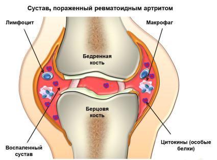 Сустав,поражённый ревматоидным артритом