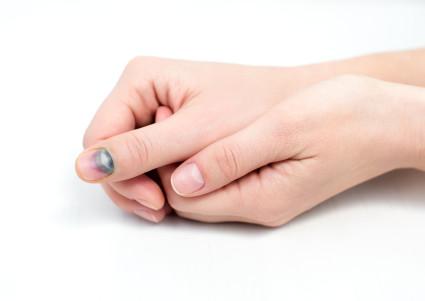 Лечить ушиб пальца можно при помощи настоек наших бабушек
