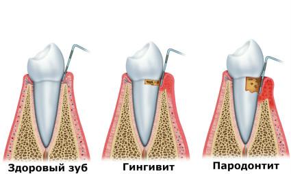 Процесс разрушения зуба при пародонтите