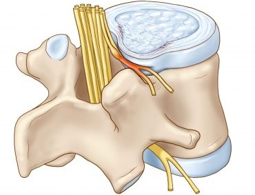 Протрузии в пояснично-крестцовом,вызваны компрессией корешков нервов спинного мозга