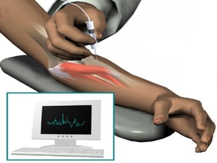Информативный метод исследования по нервным волокнам состояния мышц и нервов