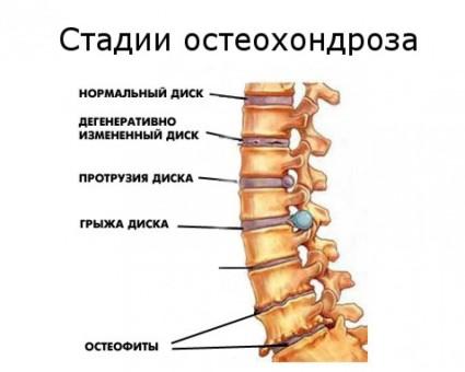Существуют ещё и стадии развития остеохондроза и они не накладываются на степени