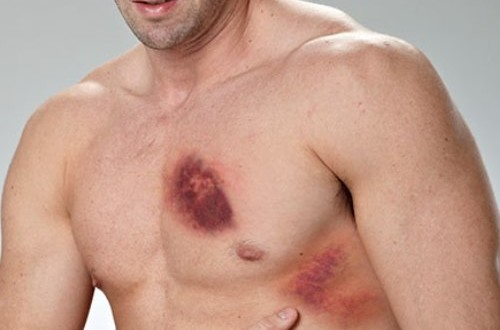 Болит грудная клетка после удара