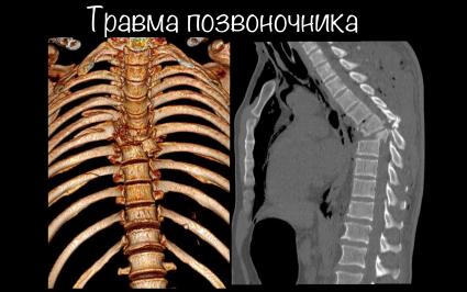 Травма позвоночника на КТ и рентгене