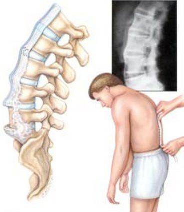Если сделать на этом этапе рентген, то он покажет частичное сращение