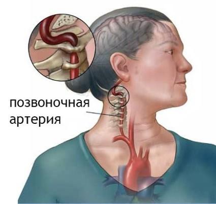 В результате давление меняется и появляется синдром позвоночной артерии