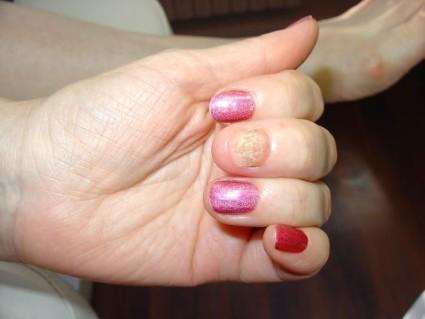 Часто ушиб пальца задевает ноготь