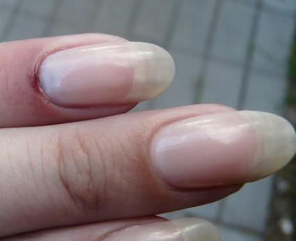 При ушибе ногтя,после первой помощи,нужно обратится к врачу