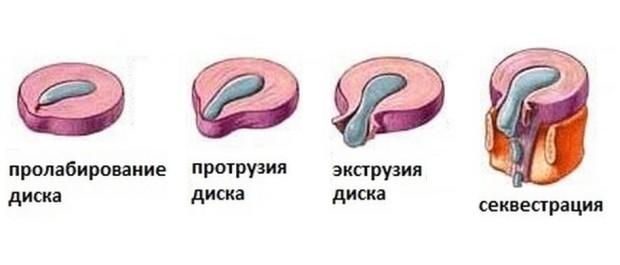 Межпозвоночная грыжа - повреждение межпозвоночного диска