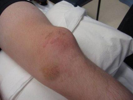 На пораженное колено нужно приложить лед