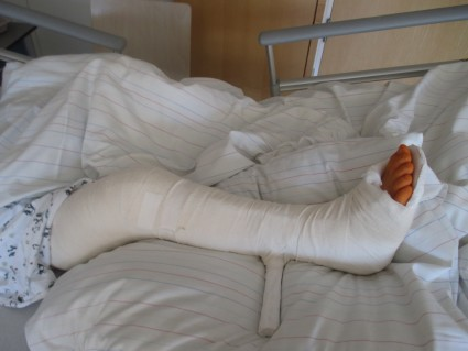 После вправления травмы второй степени тяжести накладывается гипсовая лонгета