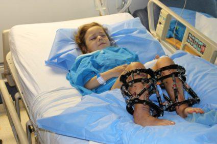 Аппарат Илизарова помогает людям встать на ноги