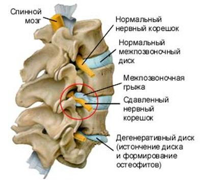 Людей с остеохондрозом верхнего отдела позвоночника часто беспокоит головная боль
