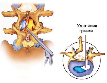 Удаление грыжи при помощи эндоскопии