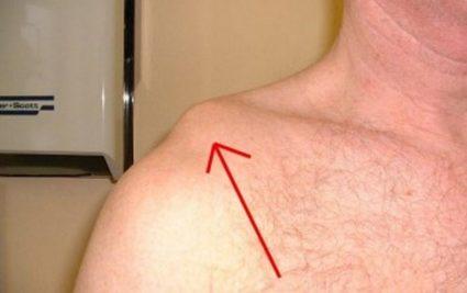Вывих или подвывих в акромиальном конце ключицы характеризуется наличием боли в поврежденном месте