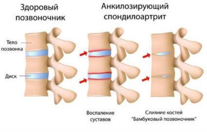 Подобное состояние называется анкилозом
