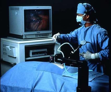 Микродискэктомия эндоскопическая