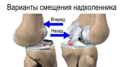 Растяжение связок коленного сустава причины и лечение в домашних условиях