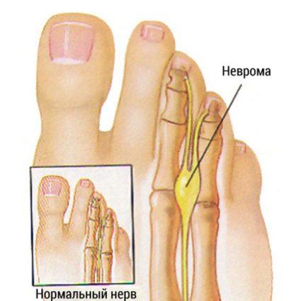 Синдром Мортона обычно поражает только одну стопу