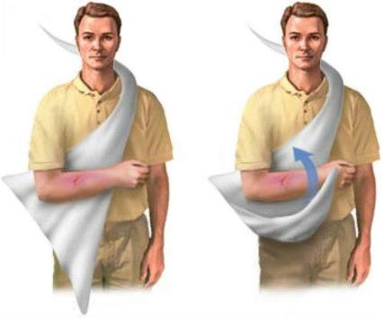 Фиксация руки при помощи повязки