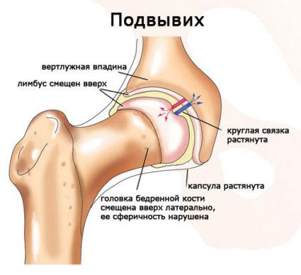 Основной причиной считается нарушенная закладка бедренной кости