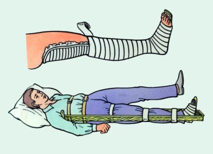 Наложение шины на травмированную ногу