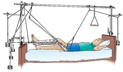 Методика скелетного вытяжения