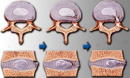 Существуют три степени шейного остеохондроза
