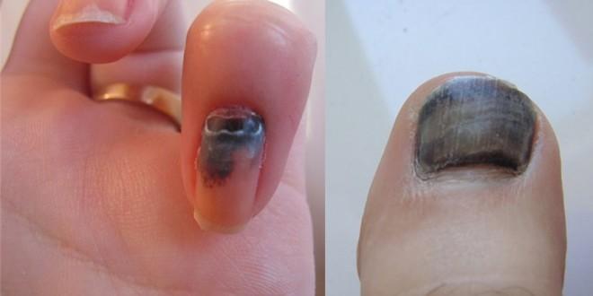 травма ногтя на руке