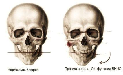 Череп с травмой черепа