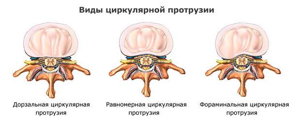 Виды циркулярной грыжи