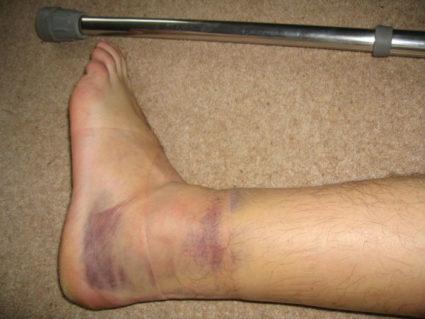 Вывих часто происходит при падении на ступни и пятки с высоты