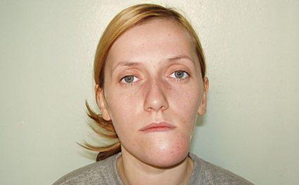 Нередко вывих челюсти является результатом перенесенных судорог