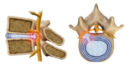 Ущемление седалищного нерва вызывает резкую боль в пояснице и ягодицах