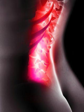 Опоясывающая боль внизу спины и живота с моментами «прострелов», называется люмбаго